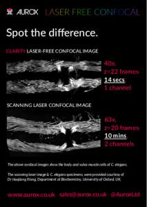 Spot the difference. CLARITY LASER-FREE CONFOCAL IMAGE 40x, z=22 frames 14 secs,